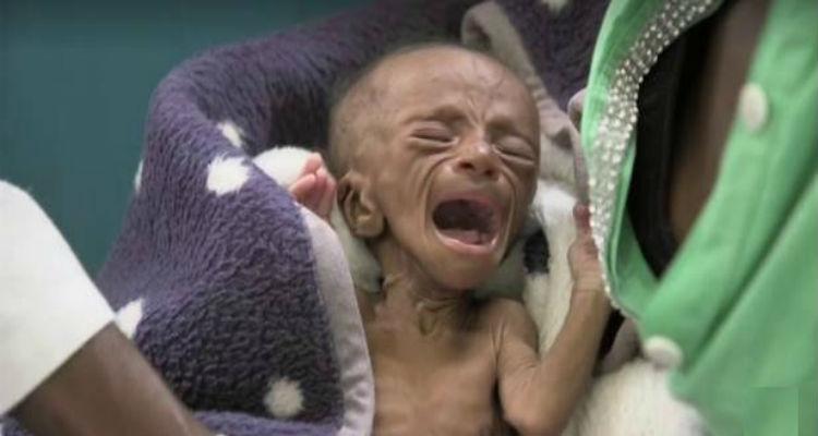 crianças-fome