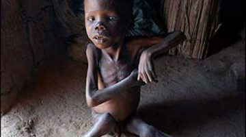 desnutricao-angola